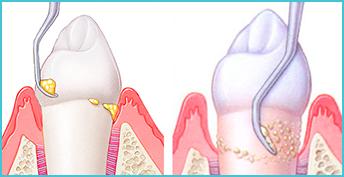 Зубной камень удаление цена